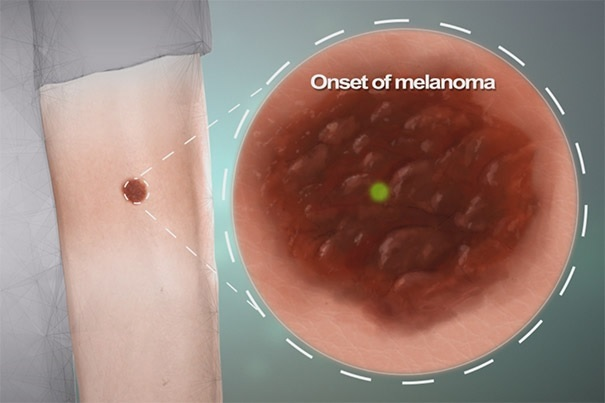 Melanoma Onset
