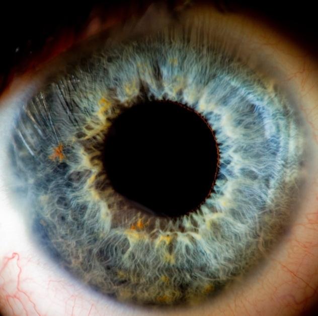 Eye human